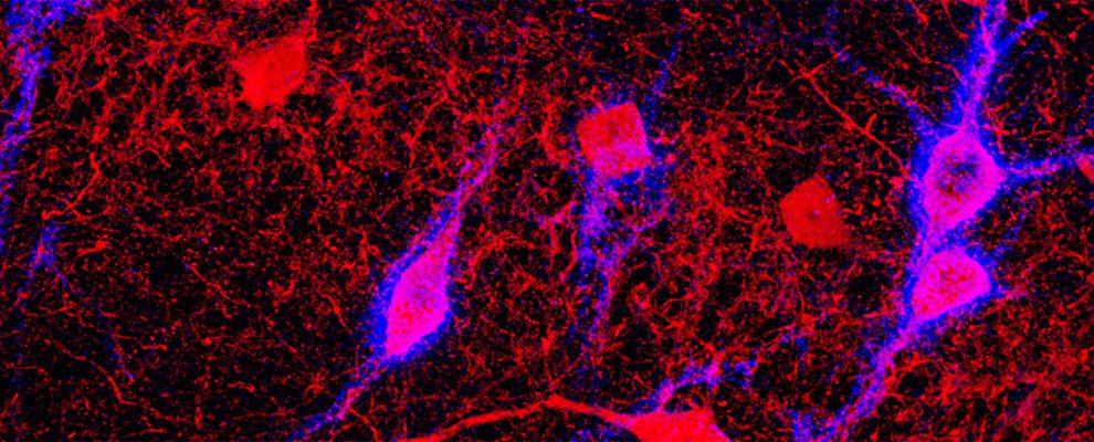 Una investigación de INCLIVA proporciona nuevos datos acerca de las alteraciones del cerebro en las enfermedades psiquiátricas/Img. INCLIVA
