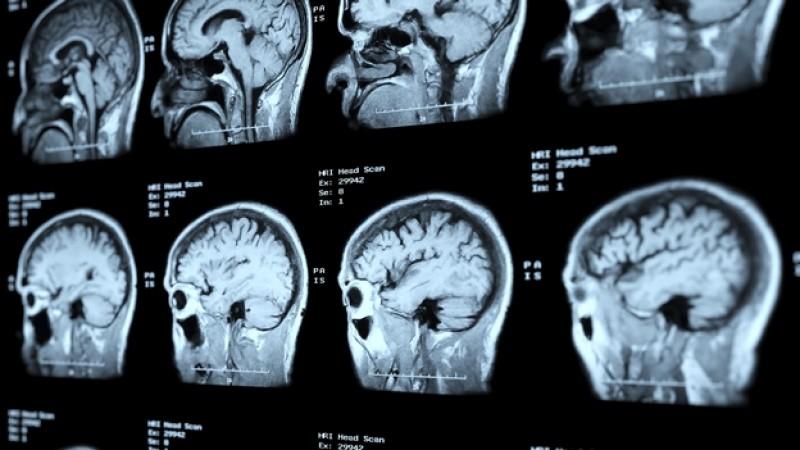 Tac de metástasis cerebral/Img. H.Quirón